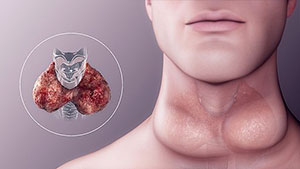 Hypothyroidism Solution - Disease
