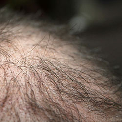 Hairfortin - Hair loss