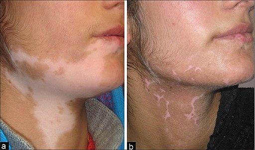Vitiligo Miracle - Skin Disease